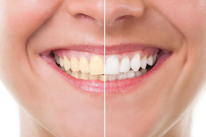 teeth whitening near