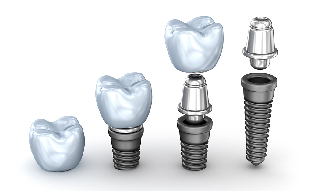 Implant Supported Dentures Los Angeles and Beverly Hills