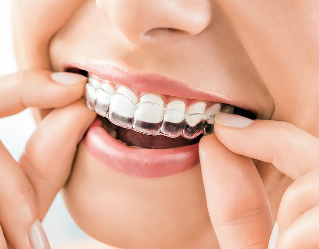 Invisalign Discount in Mar Vista, Los Angeles