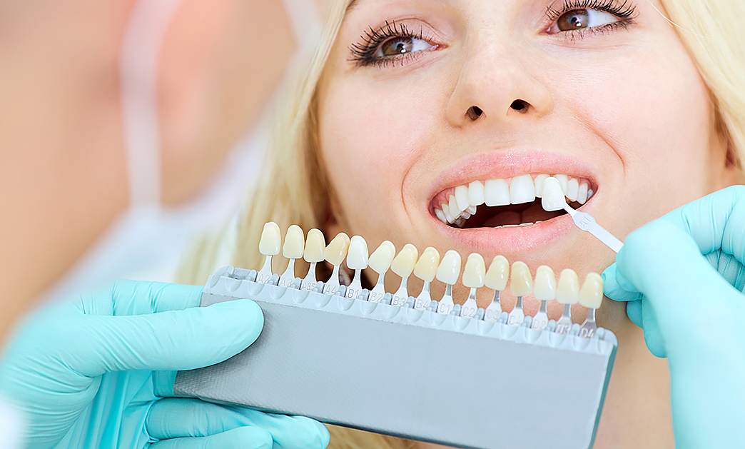 Teeth Whitening Los Angeles and Mar Vista
