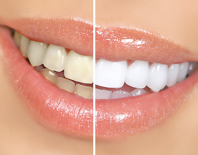 Teeth Whitening Offer in Mar Vista and Los Angeles